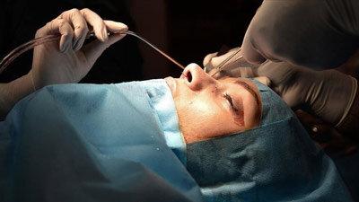 شیوههای مدرن پزشکی برای عمل جراحی بینی