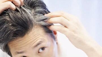 ۶ عادت رایج که باعث سفیدی زودرس مو می شوند