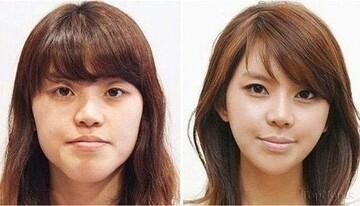 زنان کدام کشور بیشترین عمل جراحی زیبایی را انجام میدهند؟