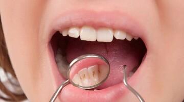 خوردن این خوراکیها دندانهایتان را خراب میکند