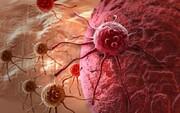 ابداع مهم پژوهشگران آمریکایی برای درمان انواع سرطان