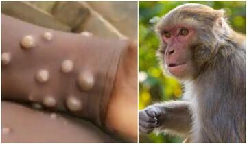 ویروس «آبله میمونی» چیست و چقدر خطرناک است؟