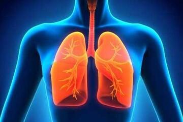 معرفی علائم سرطان ریه / عکس
