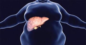 درمان کبد چرب با چند روش ساده و خانگی؛ از کاهش وزن و نوشیدن قهوه تا مصرف مکملهای امگا ۳