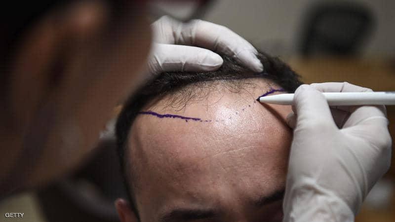 بهترین روش کاشت مو با تراکم بالا