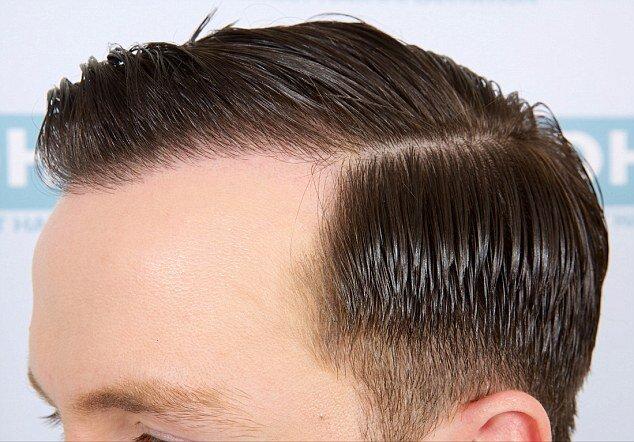عوامل موثر بر درصد موفقیت جراحی کاشت مو