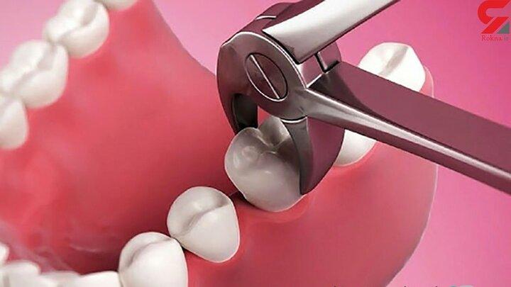 عوارض خطرناک نکشیدن دندان عقل نهفته که از آن بی اطلاعید!