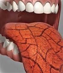 علت خشک شدن دهان چیست؟ + عوارض و نحوه درمان