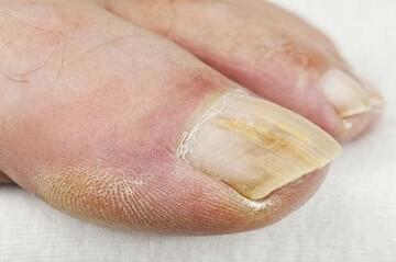 «ناخنهای کووید» چیست و چه علائمی دارد؟