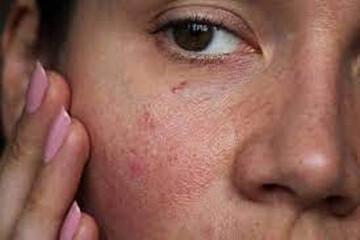 سندرم پوست حساس چیست؟