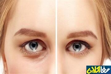 سریع ترین و ساده ترین روش خواباندن پف چشم
