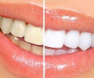 ۴ روش برای داشتن دندانهایی سفید