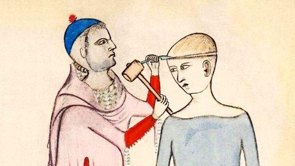 عجیبترین و ترسناکترین روشها برای درمان سردرد / تصاویر