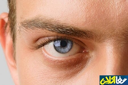 روش تشخیص و درمان بیماری آب سیاه چشم