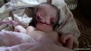 ویدیو ترسناک از عجیبترین نوزاد دنیا / فیلم