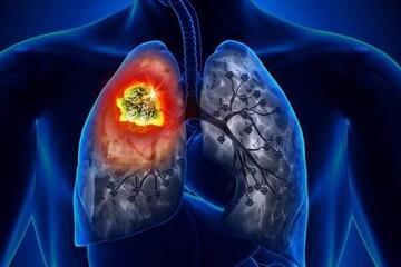 مهمترین علائم سرطان ریه که از آن بی اطلاعید! / عکس