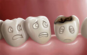 این مواد غذایی دندانهایتان را از بین خواهد برد!