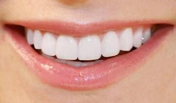 عوامل زردی دندان و روشهایی برای سفیدی آنها