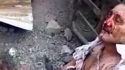 لحظه وحشتناک قطع شدن پاهای یک مرد در انفجار کپسول اکسیژن / فیلم