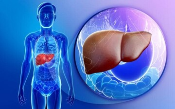درمان کبد چرب با چند روش ساده و کاربردی