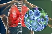 نقش پزشکان در شیوع قارچ سیاه؛ آیا تجویز کورتون و دگزامتازون برای درمان کرونا موجب شیوع این بیماری شد؟