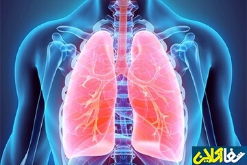 پاکسازی ریه با مصرف این خوراکیها