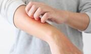 نشانههای پوستی کرونا را بشناسید