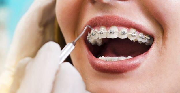 بهترین سرویس ارتودنسی دندان را در کلینیک دندانپزشکی دکتر سریتا تجربه کنید