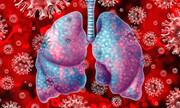 دارویی موثر برای بهبود فیبروز ریوی بیماران کرونایی کشف شد
