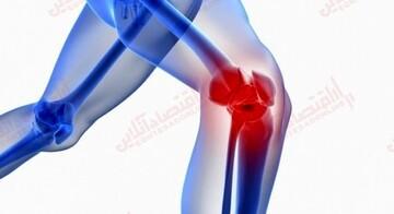 درمان خانگی زانو درد با چند روش ساده و خانگی