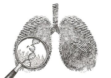 راز بروز سرطان ریه در افراد غیرسیگاری