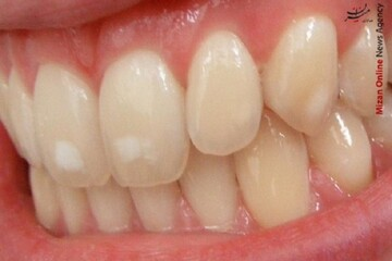 عوارض و فواید جرم گیری دندان چیست؟