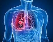 درمان سرطان ریه با یک داروی جدید