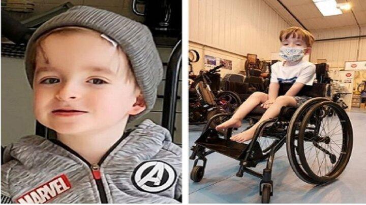 بیماری عجیب کودک انگلیسی که زندگی را برایش سخت کرده است / عکس