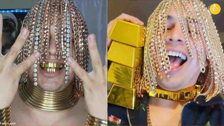 کاشتن عجیب زنجیر طلا بر روی سر به جای مو توسط خواننده سوژه شد! / فیلم