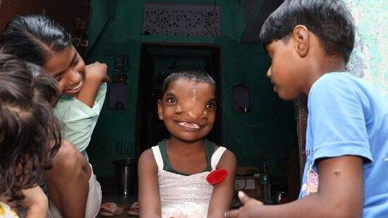دختر شش ساله هندی که دو تا بینی دارد! / عکس