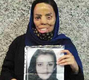 جزییات اسیدپاشی عروس به خواهرشوهر / اعتراض به درخواست آزادی عروس اسیدپاش