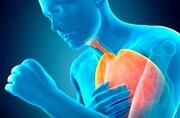 نشانههای پیشرفت ویروس کرونا و درگیری ریه / عکس
