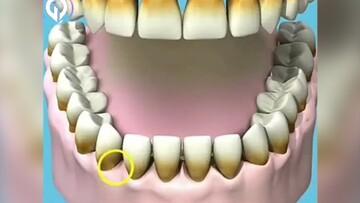 عوارض خطرناک کشیدن سیگار بر دهان و دندان