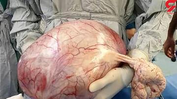 شکم برآمده زن یزدی پزشکان را شوکه کرد / عکس