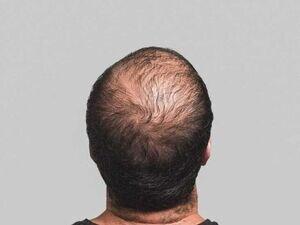 یک ترفند ساده برای جلوگیری از ریزش مو