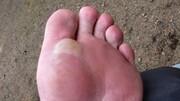 نحوه پیشگیری و درمان تاول پا در پیاده روی اربعین / عکس