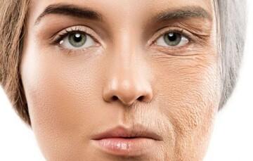 این ۱۰ ماده غذایی پوستتان را زشت میکند
