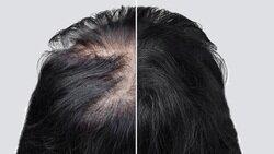 عادت های اشتباهی که موجب نازک و کم پشتشدن موها