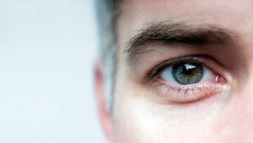 اگر زیاد به موبایل خیره میشوید برای مراقبت از چشمهای خود این کارها را انجام دهید! / عکس