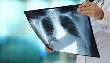 اگر این علائم را دارید یعنی ریههایتان درگیر کرونا شده است! / فیلم