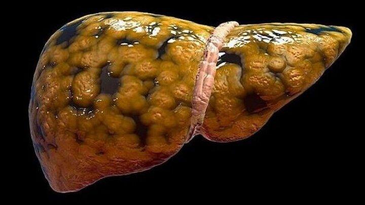 علائمی که نشان می دهند کبدتان چرب است