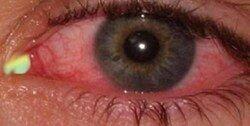 مراقب عوارض چشمی ویروس کرونا باشید / احتمال نابینایی وجود دارد!