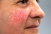 تشخیص بیماری های کبد با این تغییر پوست