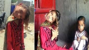 تصاویری تلخ از یک دختر با گردن ۹۰ درجه!
